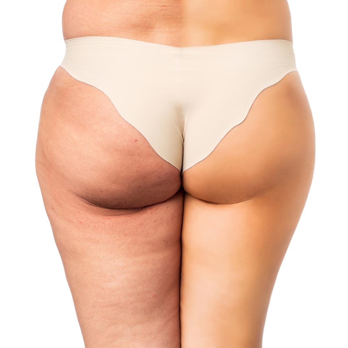Celulitida je nejen estetický problém. Trápí až 90 % všech žen a dokonce jí trpí i muži.