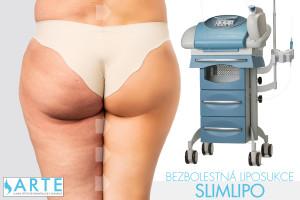 Krásnější nohy bez bolesti nabízí metoda bezbolestné liposukce SlimLipo. Nabízí ji brněnská klinika Arte Clinic.