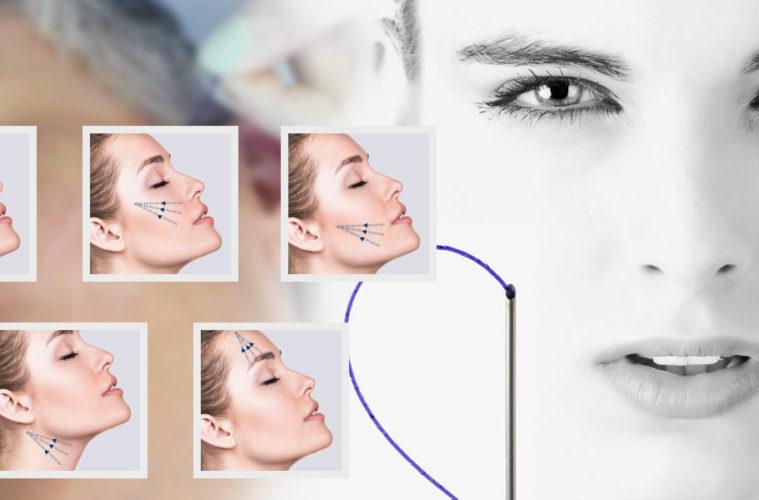 Neinvazivní lifting je velice oblíbeným řešením pro povislé tváře i vrásky. Víte ale, že niťový lifting umí nastartovat i procesy samoomlazení?