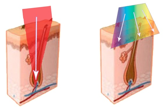 Princip trvalého odstranění chloupku: Laserová epilace (vlevo) vs. IPL epilace (vpravo).